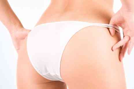 Sanctuary Clinic - Endermologie Lipo Massage - Save 75%