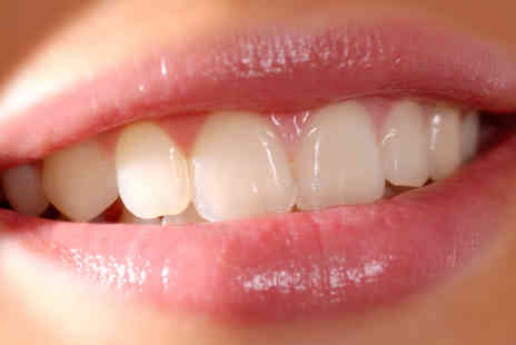 Covent Garden Dental Spa - Home Teeth Whitening - Save 67%