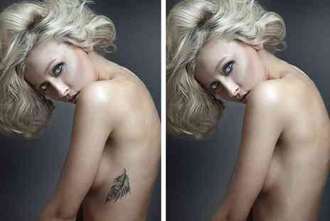 "Im Beautiful Clinic - Three sessions of  laser tattoo removal on a 1"" x 1"" area  - Save 52%"