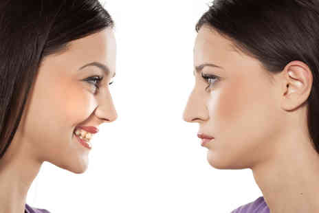 Harley Street Elite Clinic - Non surgical nose reshaping including consultation - Save 71%