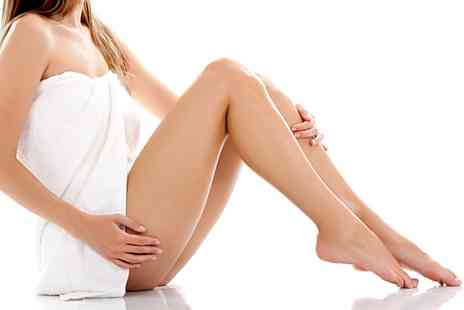 Indulgence By Susan - 20 or 30 Minute Spider Vein Removal Session  - Save 34%
