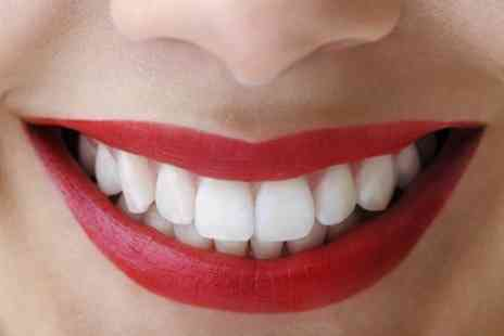 Glamour Smile Clinic - Zoom Laser Teeth Whitening at Glamour Smile Clinic - Save 84%