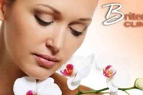 Britedent Clinic - Facial Injectionfor £59 for £180 Towards Choice of Treatment - Save 0%