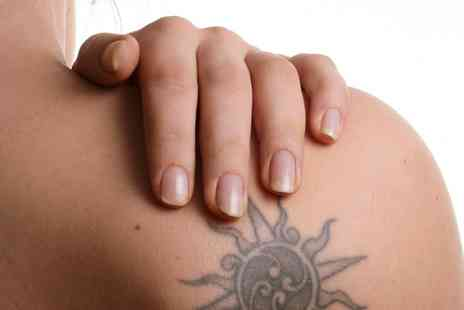 British Laser Clinics - Three Sessions of Laser Tattoo Removal  - Save 80%