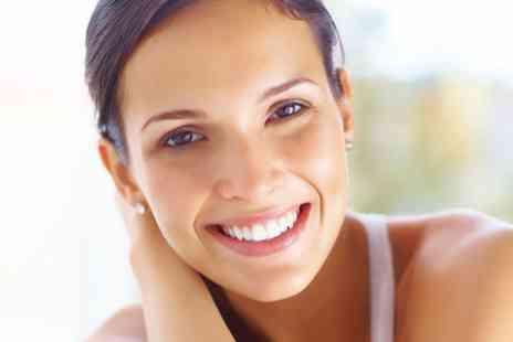 Charlottes   - One Session of Diamond Microdermabrasion with Optional Express Facial  - Save 57%