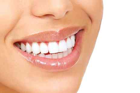 Whitening Clinic - Laser Teeth Whitening plus an Exam - Save 74%