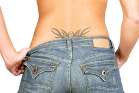 Nuriss Skincare & Wellness - Four  Laser tattoo removal treatments - Save 56%