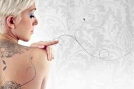 Tattoo Removal Nottingham - Three Sessions of Tattoo Removal - Save 61%