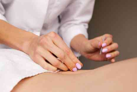 Anna Bernard Acupuncture - One Hour Acupuncture Session with a Consultation - Save 83%