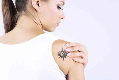 EnVogue Centre - One or Three Sessions of Laser Tattoo Removal on a Small or Large Area  - Save 46%