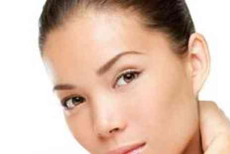 Precious Skin Laser Clinic -  Four thread vein removal sessions - Save 75%