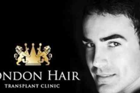 London Hair Transplant Clinic - Follicular Unit Transplant Treatment For Up to One Thousand Hairs - Save 60%
