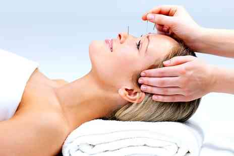 CT Acupuncture Clinic - Traditional or Cosmetic Acupuncture Session  - Save 40%