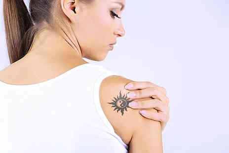 VGmedispa - Three Sessions of Laser Tattoo Removal with a Consultation - Save 84%
