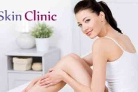 The Skin Clinic - Six IPL Sessions on Three Small, Two Medium or One Large Area - Save 88%