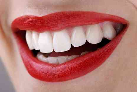 Smileright - Teeth Whitening, Check Up and Two X Rays - Save 79%