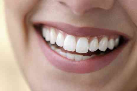 Dentcare1 Smile - BriteSmile Teeth Whitening Treatment with a Consultation - Save 49%