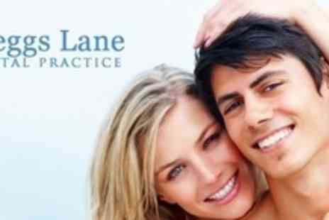 Cleggs Lane Dental Practice - Dental Implant With Porcelain Crown - Save 54%