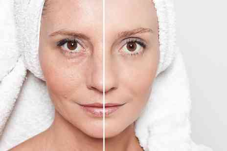 The Acculaser Medispa - De pigmentation derma peel - Save 67%
