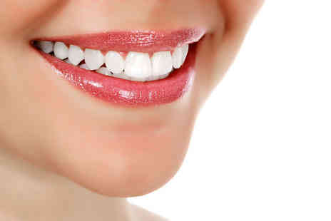 London Smile Kraft - LED teeth whitening session or Zoom teeth whitening session - Save 83%
