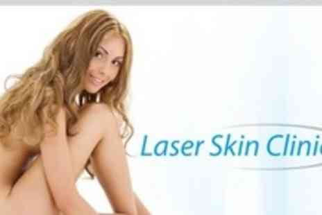 Laser Skin Clinic - Three Laser Thread Vein Treatments - Save 74%