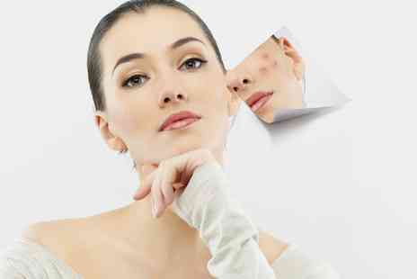 Acculaser Medispa - Acne Peel System Facial - Save 65%
