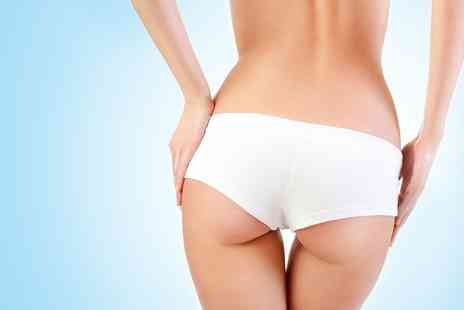 VGmedispa - One or Two Sessions of Pert fect Alma Laser Bum Lift Plus Consultation  - Save 91%