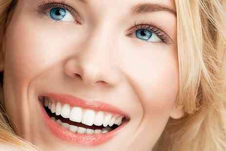 Bright White Smiles - Teeth Whitening Session - Save 78%