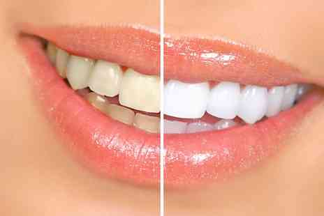 MadFix Consmetics - Laser Teeth Whitening - Save 49%