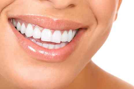 All Saints Dental Clinic - Choice of Braces for One or Two Arches Plus Home Teeth Whitening Kit - Save 72%