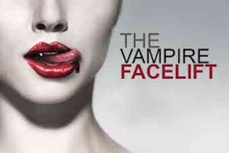 Aestha Clinic - Vampire Face Lift - Save 40%