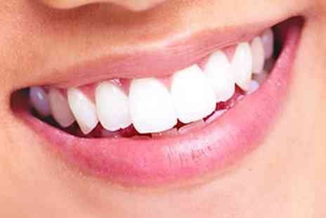 Covent Garden Aesthetic Clinic - Zoom Laser Teeth Whitening inclusive of Take Home Kit - Save 70%