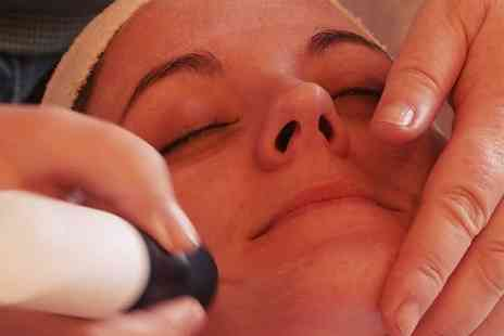 Emmas Beauty Room - Microdermabrasion - Save 20%