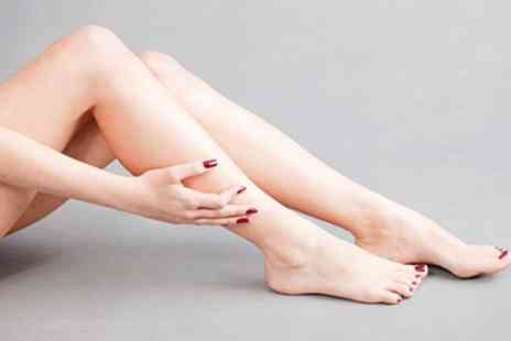 IceSmooth Beauty - Leg or Face Spider Vein Treatment on Two or Four Areas - Save 0%