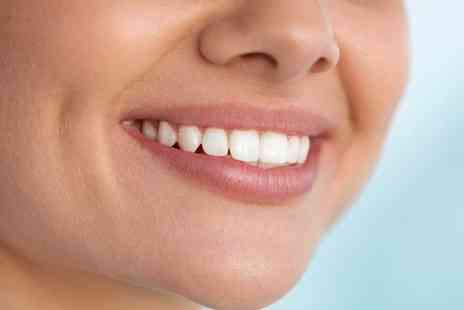 Envysmile Dental - One hour Zoom teeth whitening treatment - Save 80%
