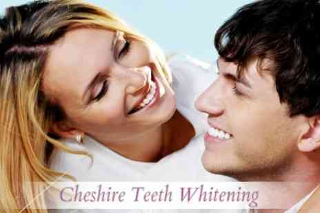 Cheshire Teeth Whitening - LED Teeth Whitening Treatment for £75 - Save 75%
