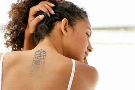 Skin Couture Studio - Three Sessions of Laser Tattoo Removal - Save 0%
