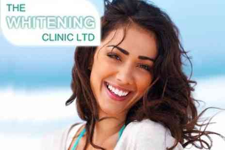 The Whitening Clinic - £85 Teeth Whitening Treatment - Save 66%
