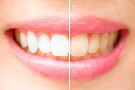 Covent Garden Aesthetic Clinic - ZOOM teeth whitening treatment or include an at home teeth whitening kit - Save 75%