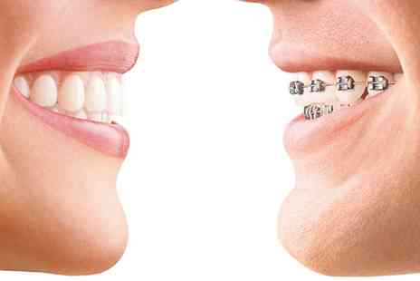 Diamond Dental and Medical Clinic - Invisalign Braces for Both Arches - Save 0%