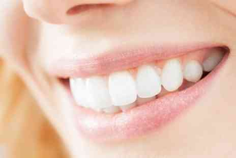 Beverly Hills Smile - LED Laser Teeth Whitening Session with a Consultation - Save 81%
