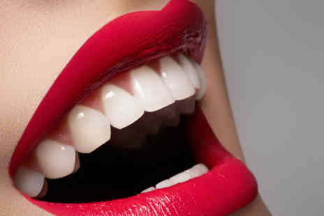 Dr Monicas Dental Clinic - Porcelain veneer - Save 75%