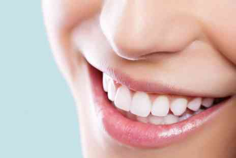 The White House - Teeth Whitening 20 Minute Top Up Treatment or One Hour Session - Save 0%