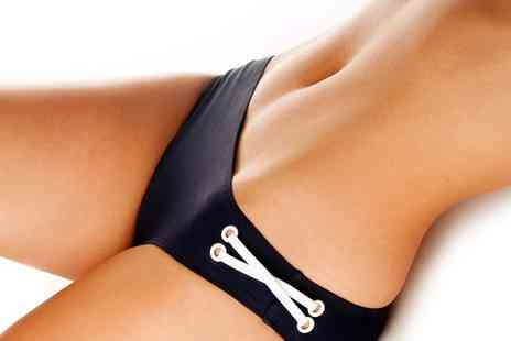 Privato Hair and Beauty - Cryogenic Lipolysis on Up to Four Areas - Save 77%