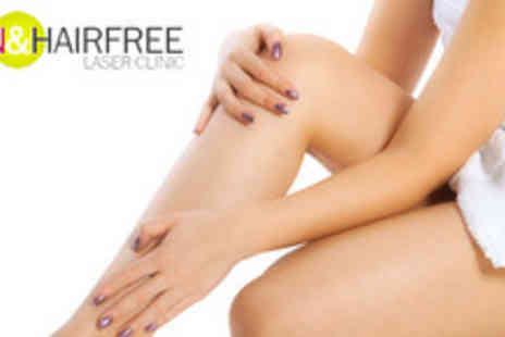 Skin and Hairfree Laser Clinic - 6 sessions of IPL on 1 large, 1 medium and 1 small area - Save 79%