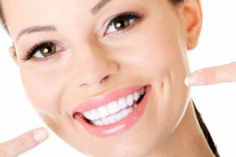 Wonder Smile - Teeth whitening treatment - Save 0%