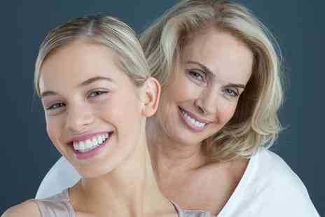 Smileright Barbican - Teeth Whitening with Check Up and Optional Two X Rays - Save 79%