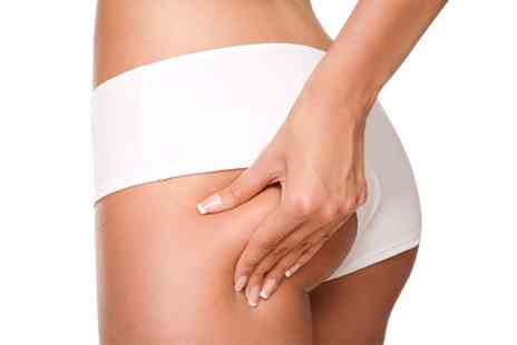 Flawless Beautiful Skin - Two, Four or Six Sessions of Laser Lipolysis - Save 0%