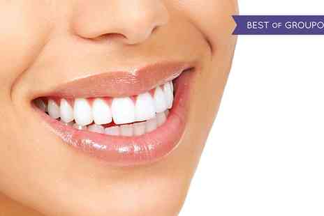 Mint Dental - Celebrity Teeth Whitening - Save 47%