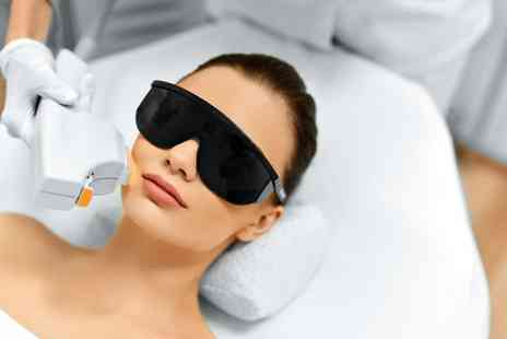 Sheer Bliss - Six sessions of laser hair removal on 3 small areas - Save 38%